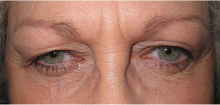 Bilateral Upper Lid Blepharoplasty Before