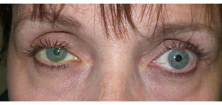Right Upper Lid Ptosis Before