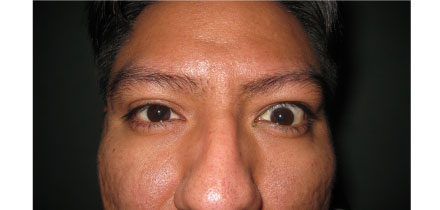Right eyelid retraction