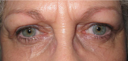 Bilateral Upper Lid Blepharoplasty After