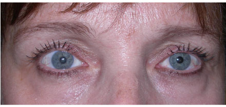 Right Upper Lid Ptosis After