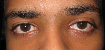Left Upper Lid Ptosis After