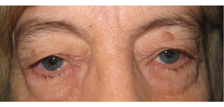 Bilateral Upper and Lower Lid Blepharoplasty Before