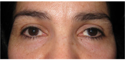 Left Upper Lid Ptosis Before