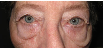 Eyelid Surgery Blepharoplasty Washington DC Maryland