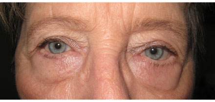 Bilateral Upper and Lower Lid Blepharoplasty After