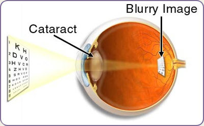 img-cataract