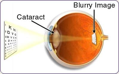 cataract treatment in washington dc northern virginia and