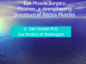Muscle Resection of Rectus Muscles