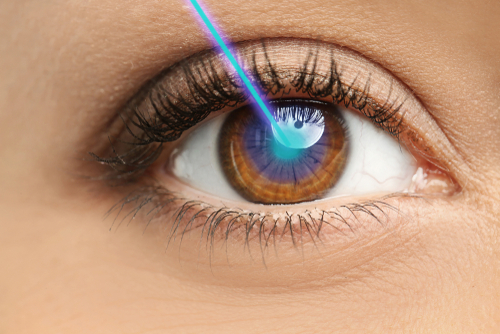 Endocyclophotocoagulation Laser graphic
