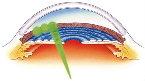 Laser glaucoma treatment graphic