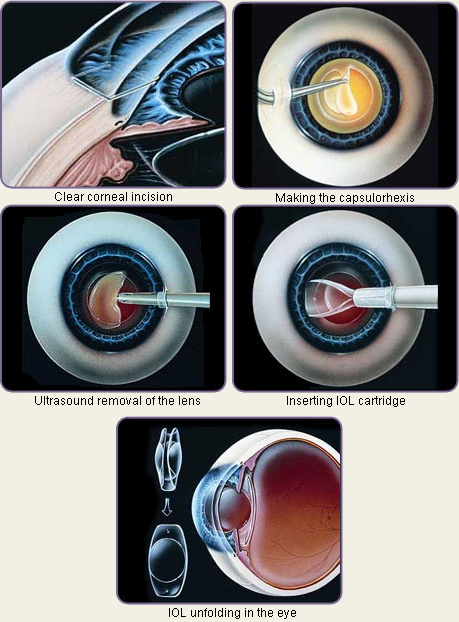 cataract treatments and are nationally and internationally recognized.